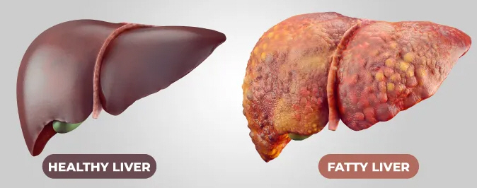 A Healthy Liver and a Fatty Liver (NAFLD)