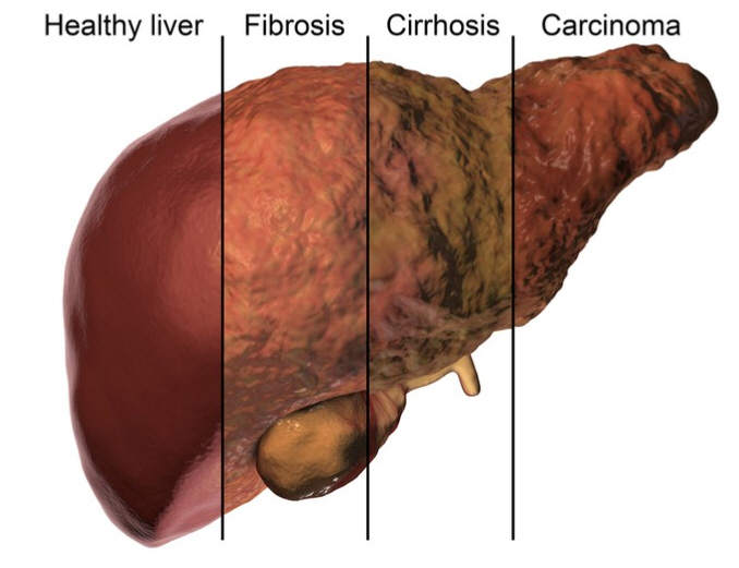 A liver showing escalating disease